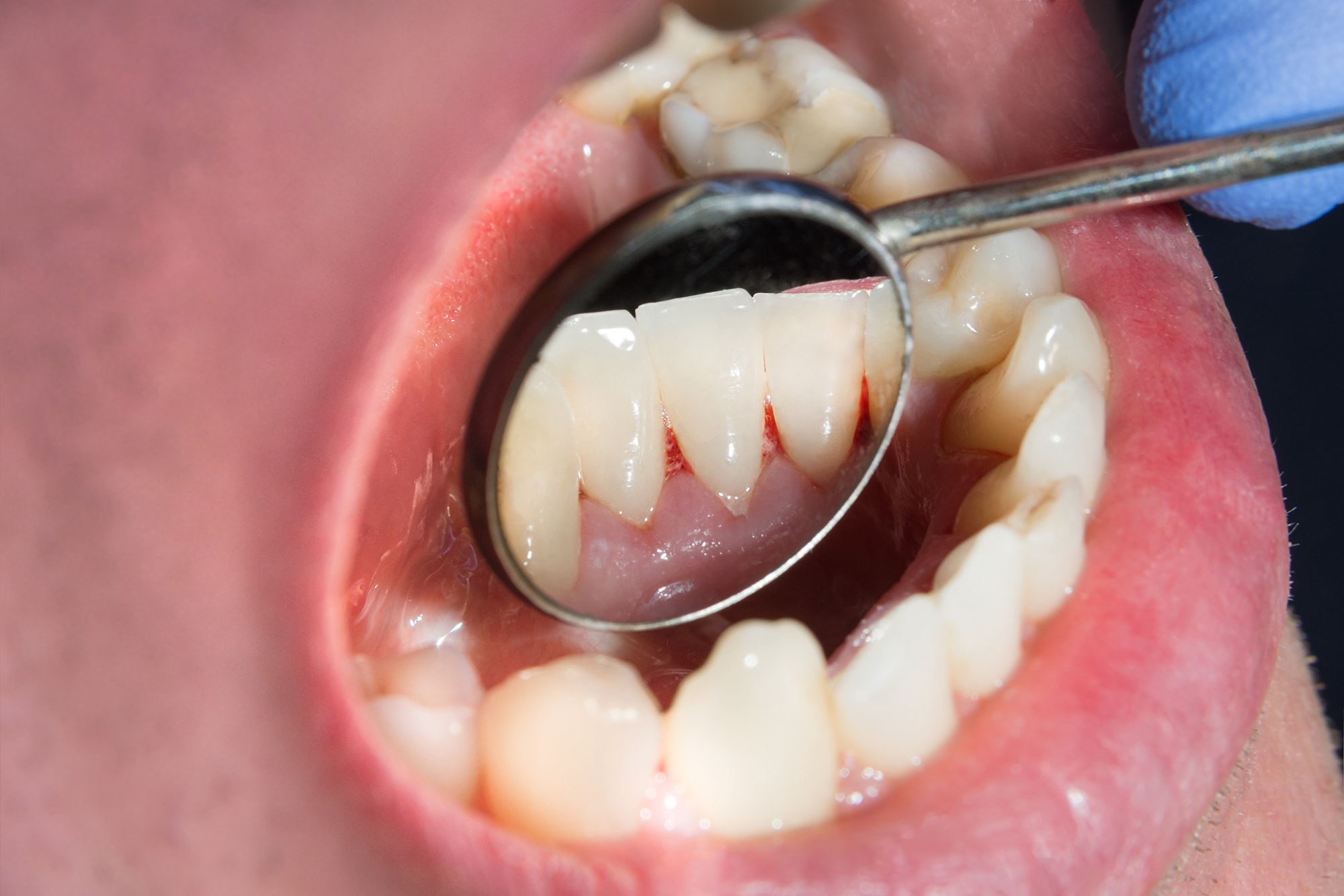 oral pathology at Encino Cosmetic Dentistry