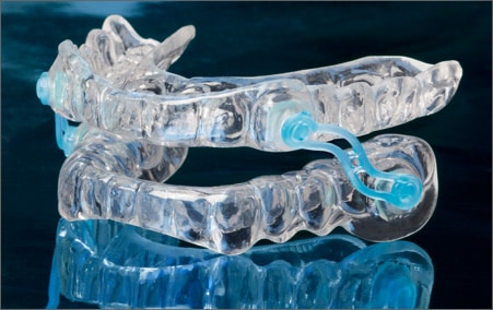 A sleep apnea appliance used to treat sleep apnea by Encino dentist at Encino Cosmetic Dentistry